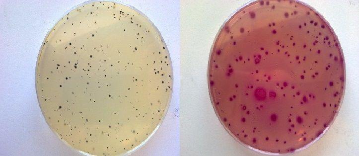 Placa con Enterobacterias en VRBG y Placa con Staphylococcus aureus en BP del estudio