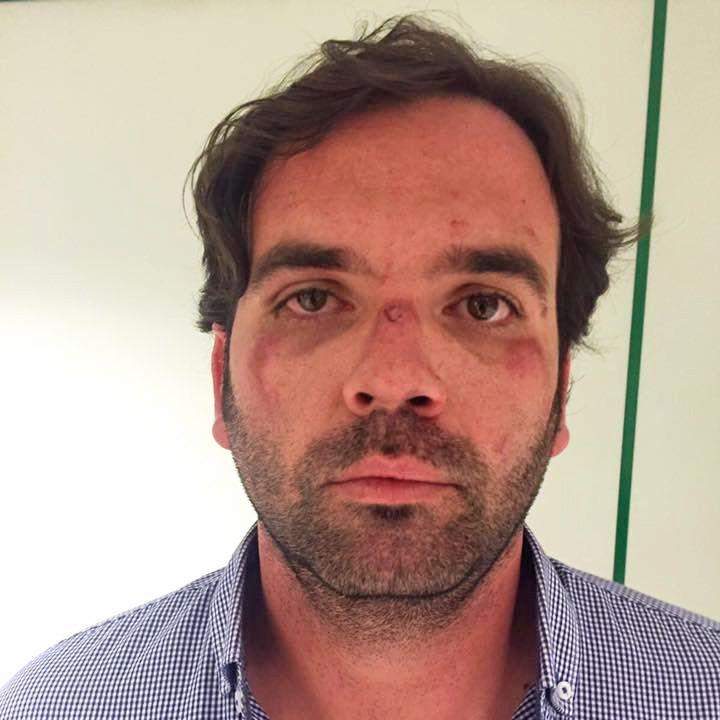 Mario Rosado agredido