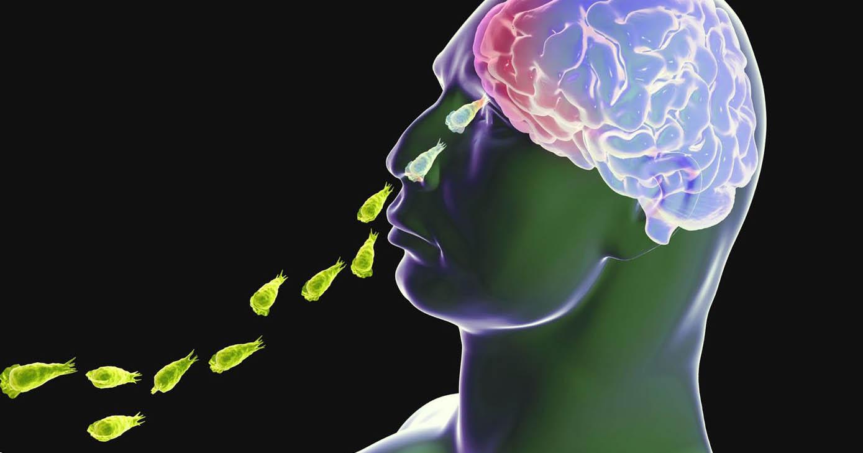 Que sintomas presentan las amebas
