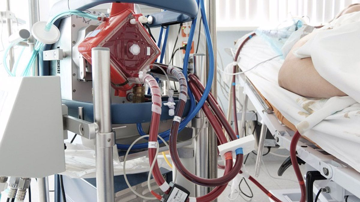 Sistema ECMO respirador Covid-19