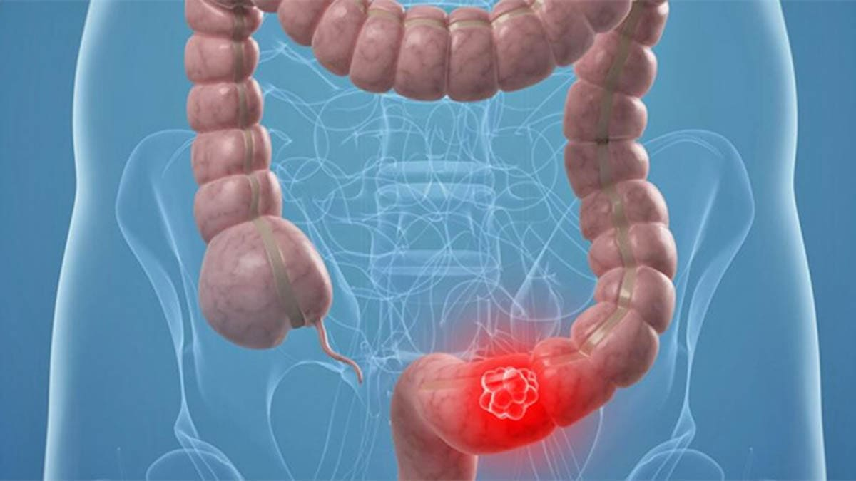 cancer de colon junta de andalucia)